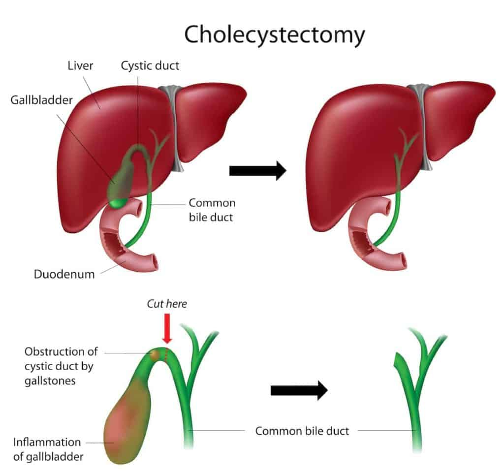 Cholecystectomy: Gallbladder Removal Surgery